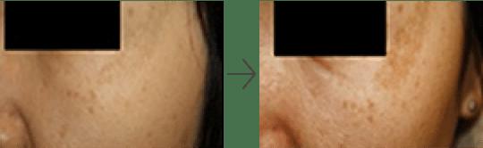 マックス プロ ジェントル ジェントルマックスプロ脱毛効果や痛みは?産毛や剛毛は?